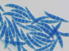 Грибы общаются с бактериями
